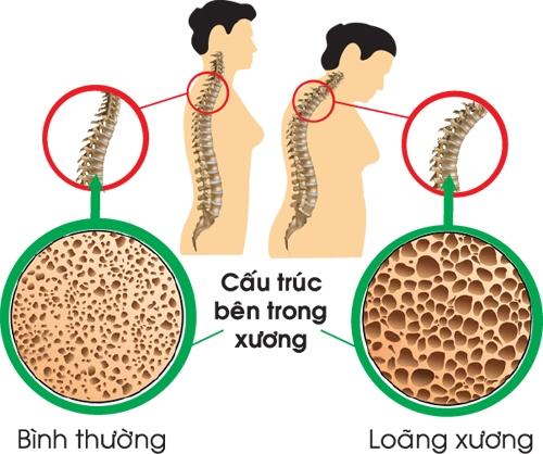 loang-xuong-51